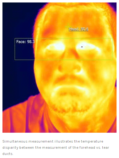 forehead scanner example